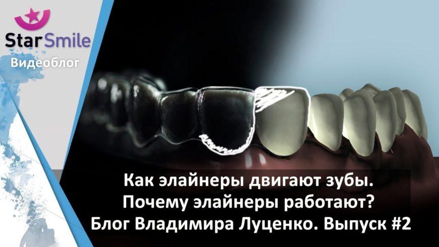 Как элайнеры двигают зубы. Почему элайнеры работают? Выпуск #2