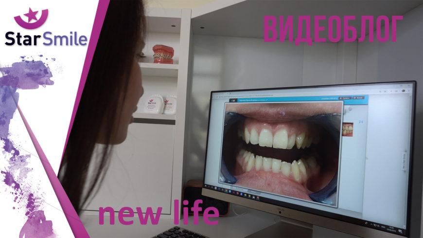 Выравнивание зубов без брекетов. Пример. Элайнеры.