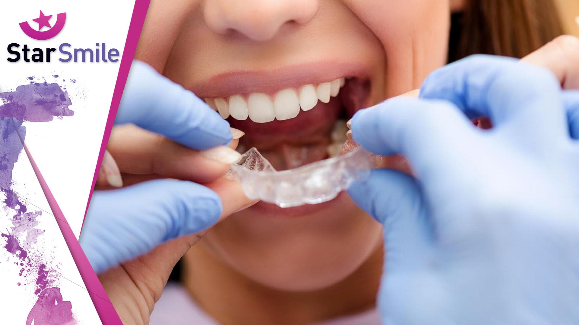 Лечение на элайнерах с точки зрения врача-ортодонта и стоматолога общей практики
