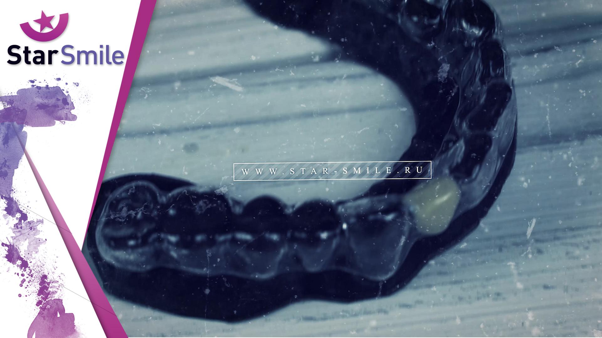 Покраска зуба в элайнере. Искусственный зуб.
